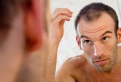 دلیل ریزش مو در آقایان و معالجه آن | مجله سلامت یاثار