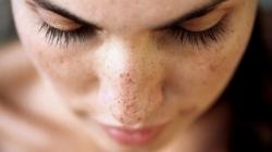 خال گیلاسی،فیبروم پوستی؛ فهرست گونه های خال و لکه های پوستی | مجله سلامت یاثار