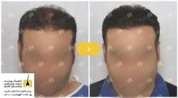 روش کاشت مو FUE - مناسبترین راهحل برای کاشت بدون درد مو | مجله سلامت یاثار