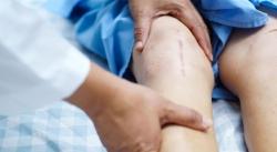 جواب به بعضی از سوالات شایع در رابطه با تعویض مفصل زانو | مجله سلامت یاثار