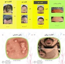 مناسبترین مرکز کاشت مو و خدمات زیبایی در تهران | مجله سلامت یاثار