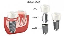 معرفی پزشک لمینت دندان و پزشک ایمپلنت دندان در یوسف آباد تهران | مجله سلامت یاثار