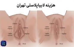 هزینه لابیاپلاستی تهران | مجله سلامت یاثار