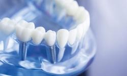 تخفیف ویژه ایمپلنت دندان در سال ۱۴۰۰ | مجله سلامت یاثار