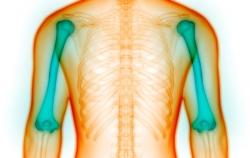 نشانه ها پوکی استخوان - 4 علامت مخفی پوکی استخوان | مجله سلامت یاثار