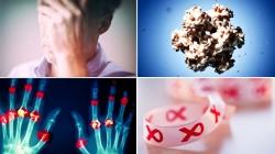 مریضی های رایج در خانم ها + احتمالا آقایان | مجله سلامت یاثار