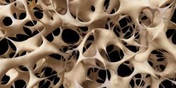 پوکی استخوان چیست؟ تمام چیز در مورد گونه های پوکی استخوان و راههای معالجه | مجله سلامت یاثار